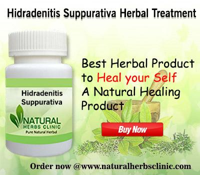 Natural Remedies for Hidradenitis Suppurativa - Img 1