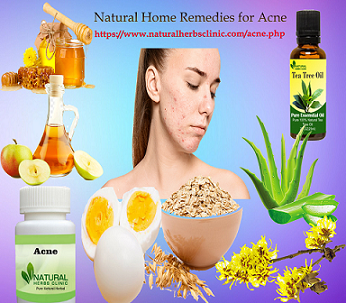 Get Rid Of Acne with Natural Home Remedies - Img 1