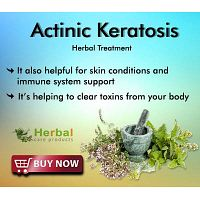 Herbal Treatment for Actinic Keratosis