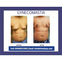 Book Your Appointment for Gynecomastia Surgery Call @ 9958221983