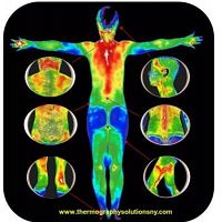 How thermography is important for detecting breast cancer - Thermographysolutionsny