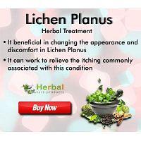 Herbal Supplement for Lichen Planus