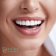 Dental veneers and dental lumineer in Roswell GA