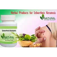 Totally Get Rid of Seborrheic Keratosis with Herbal Products