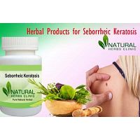 Totally Remove Seborrheic Keratosis with Herbal Products